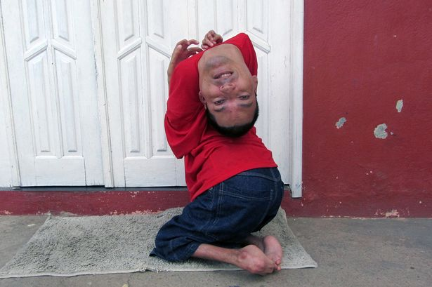 UNBELIEVABLE: Meet the man born with his head UPSIDE-DOWN {See Photos}