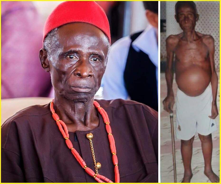 Pastor Iginla Donates One Million Naira To Nollywood Star Suffering From Liver Disease, Martins Njubuigbo
