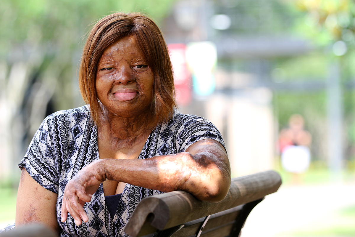 Americas got talent 2017 plane crash - Kechi Okwuchi Who Survived The 2005 Ill Fated Portharcourt Bound Flight Which Crashed On The Runway And Killed Over 100 People Including Her Close Friend